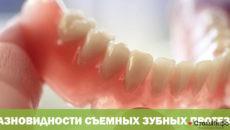 Разновидности съемных зубных протезов