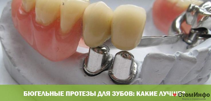 Бюгельные протезы для зубов: какие лучше?
