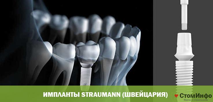 Импланты Straumann (Швейцария)
