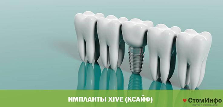 Импланты Xive (Ксайф)