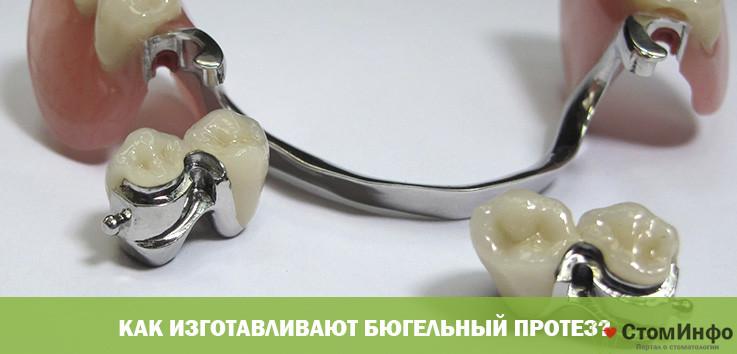 Как изготавливают бюгельный протез?