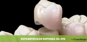 Керамическая коронка на зуб