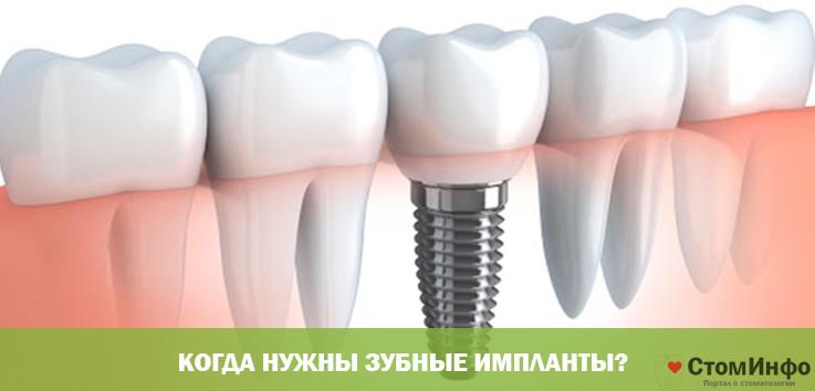 Когда нужны зубные импланты?