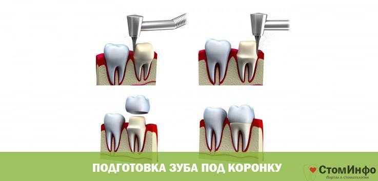Подготовка зуба под коронку
