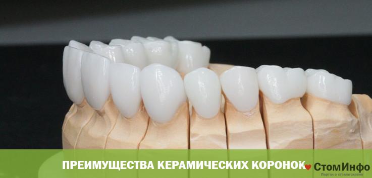 Преимущества керамических коронок