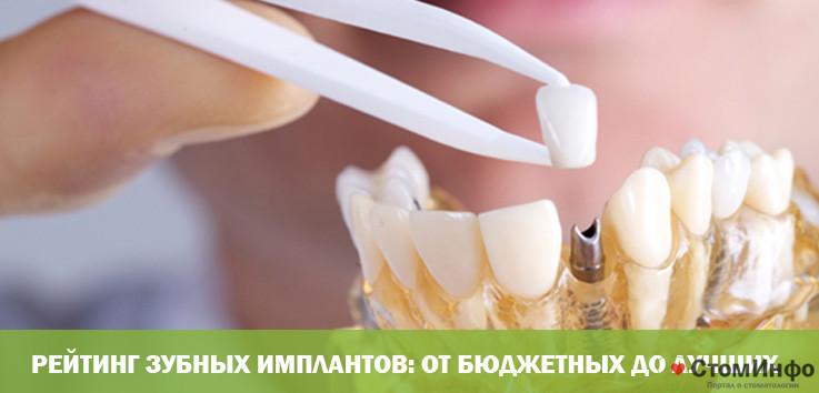 Рейтинг зубных имплантов: от бюджетных до лучших