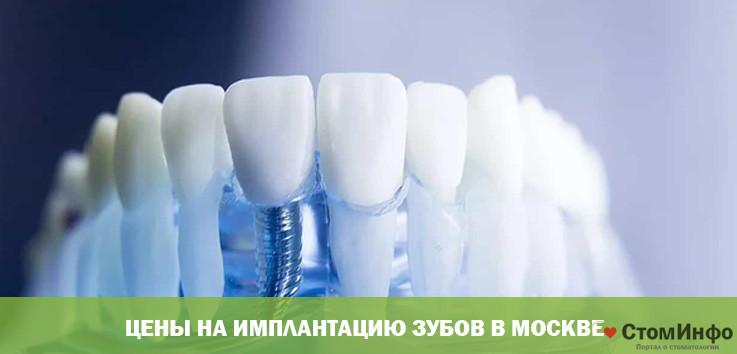 Цены на имплантацию зубов в Москве