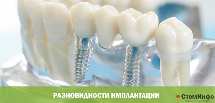 разновидности имплантации
