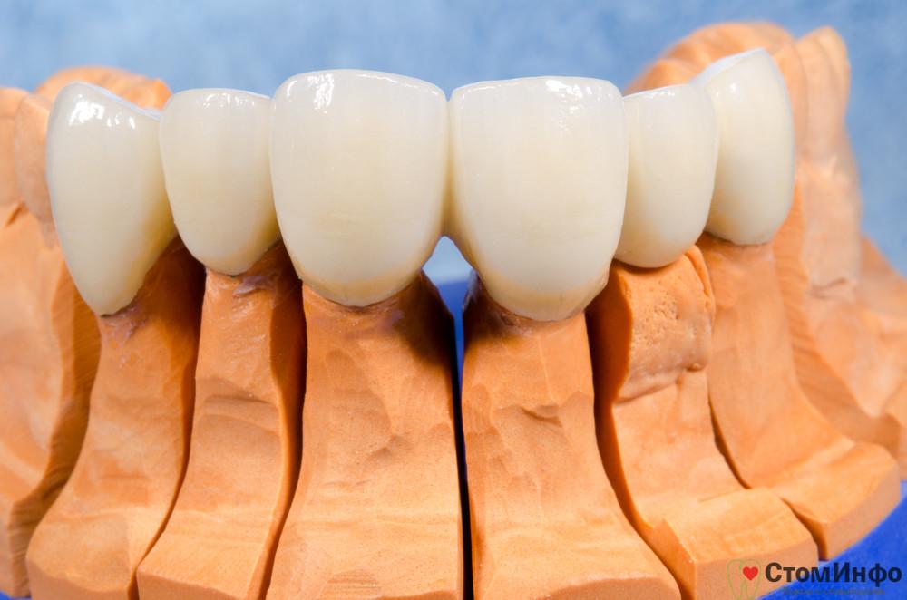 Металлокерамика на зубы