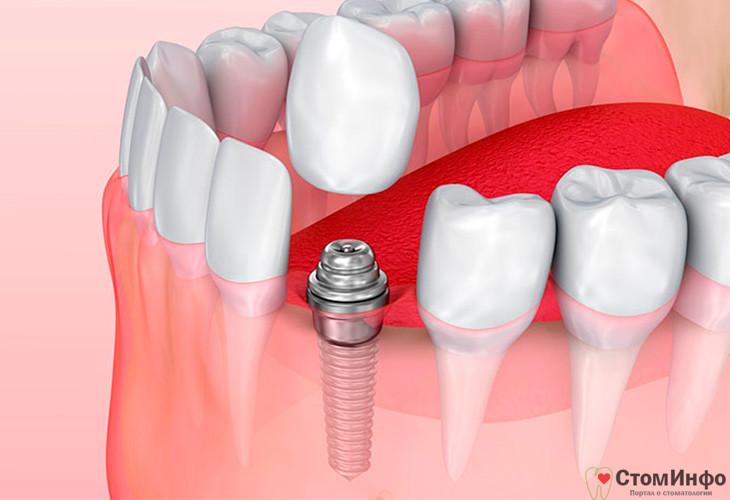 противопоказаний к имплантации зубов