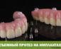 Съемный протез на имплантах
