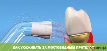 Как ухаживать за мостовидным протезом на имплантах