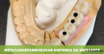 Металлокерамическая коронка на импланте