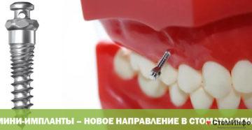 Мини-импланты – новое направление в стоматологии