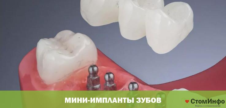 Мини-импланты зубов