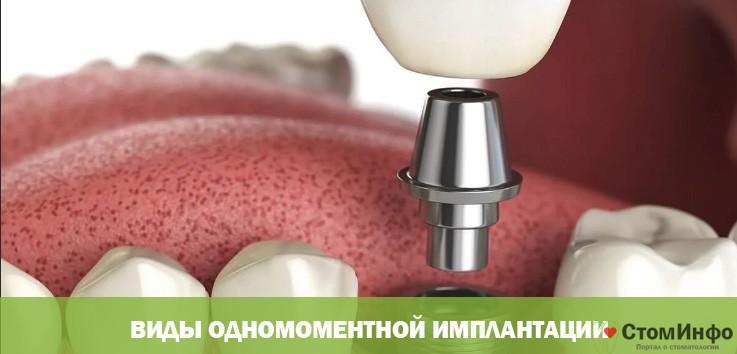 Виды одномоментной имплантации