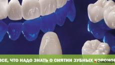 Все, что надо знать о снятии зубных коронок